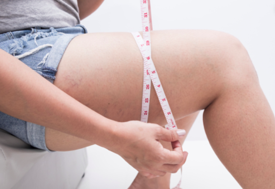 【脚やせダイエット】足が太くなる原因とその解消法とは?